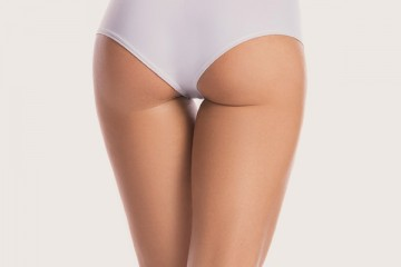 Leg laser liposuction, Smartlipo (+PAL)