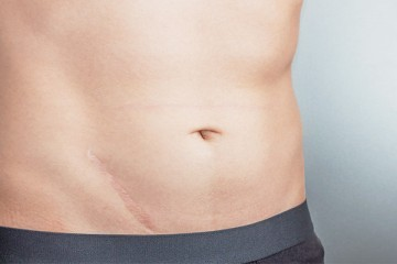 Cicatrix Treatment (acne, stretch marks, post-surgical and post-inflammatiry scars)