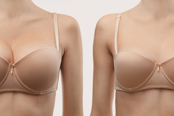 Reduction mammoplasty or breast reduction surgery
