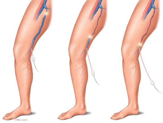 vein-ablation-procedure