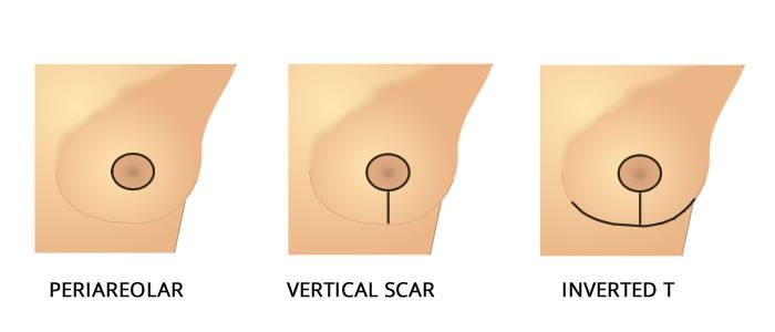 breastreduction1
