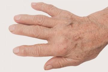 Käsivarte pigmentatsiooni ravi Nd:YAG-laseriga