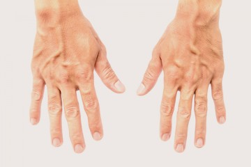 Hands. Varicose veins treatment