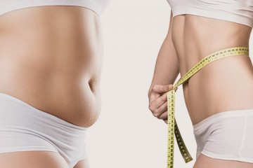 Liposuction (PAL, Smartlipo)
