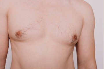 <span class='p-name'>Male Breast Reduction (Gynecomastia)</span>