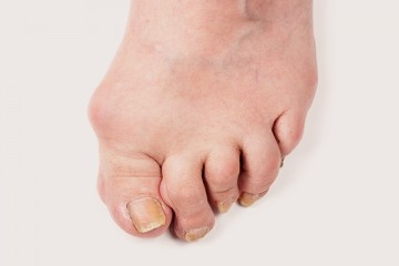 <span class='p-name'>HUMMER TOES</span>