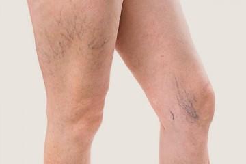 "<span class='p-name'>Varicose veins (""spider veins"") or telangiectasia</span>"